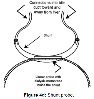 pharmaceutica-analytica-acta-Shunt-probe