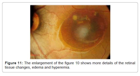 pharmaceutica-analytica-acta-edema-hyperemia