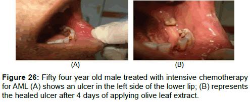 pharmaceutica-analytica-acta-olive-leaf-extract