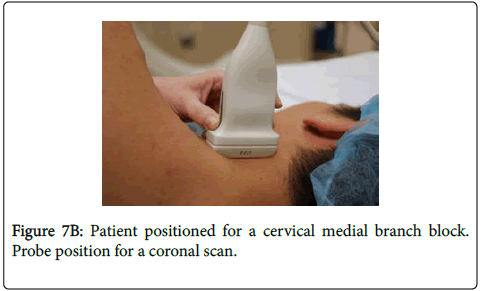 Ultrasound-Guided Cervical Medial Branch Blocks: A Technical Review ...