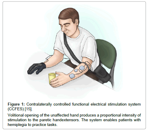Rehabilitation with Functional Electrical Stimulation in