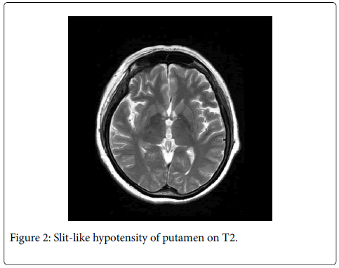 physical-medicine-rehabilitation-hypotensity-putamen