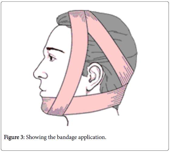 physiotherapy-physical-rehabilitation-bandage-application