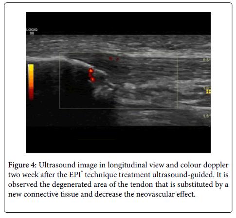 physiotherapy-physical-rehabilitation-longitudinal-view