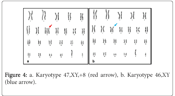 pigmentary-disorders-Karyotype