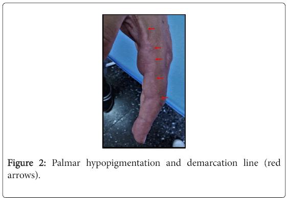 pigmentary-disorders-Palmar-hypopigmentation