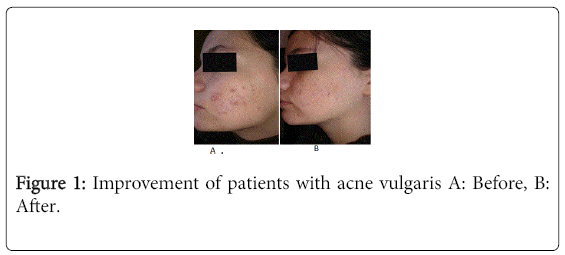 pigmentary-disorders-acne-vulgaris