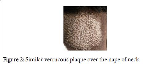 pigmentary-disorders-nape-neck