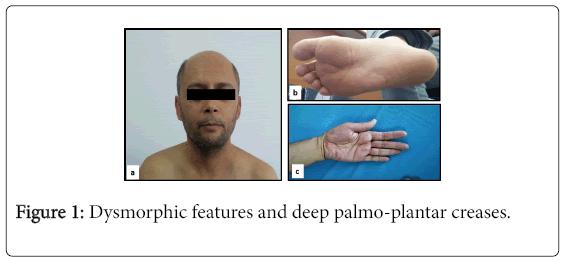 pigmentary-disorders-palmo-plantar