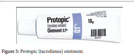 pigmentary-disorders-tacrolimus-ointment