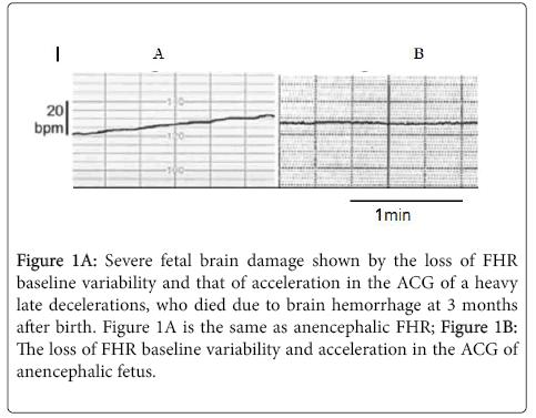 pregnancy-child-health-fetal-brain-damage