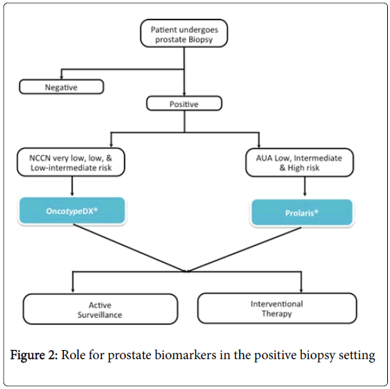 prostate-cancer-prostate-biomarkers