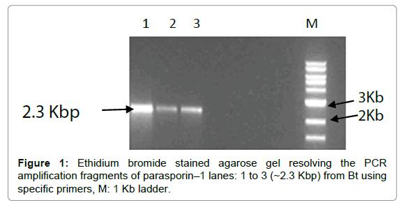 proteomics-bioinformatics-agarose-gel