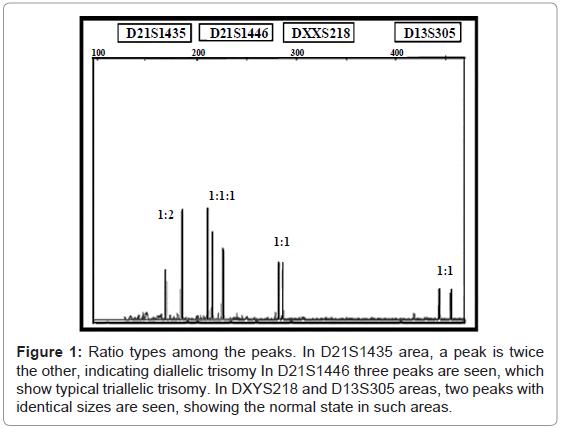 proteomics-bioinformatics-diallelic-trisomy-triallelic