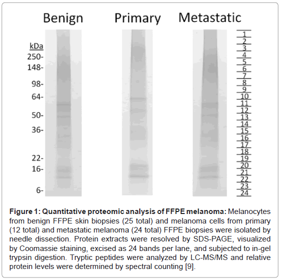 proteomics-bioinformatics-quantitative-proteomic