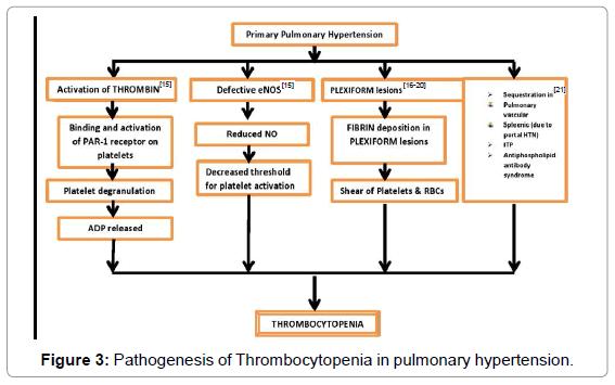 pulmonary-respiratory-Thrombocytopenia-pulmonary-hypertension