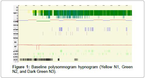 pulmonary-respiratory-medicine-Baseline-polysomnogram-hypnogram