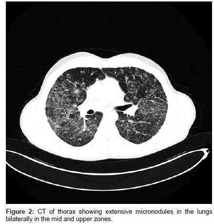 pulmonary-respiratory-medicine-CT-thorax-showing-extensive