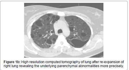 pulmonary-respiratory-medicine-High-resolution