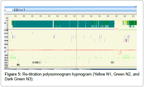 pulmonary-respiratory-medicine-Re-titration-polysomnogram-hypnogram