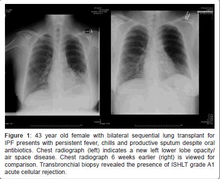 pulmonary-respiratory-medicine-acute-cellular