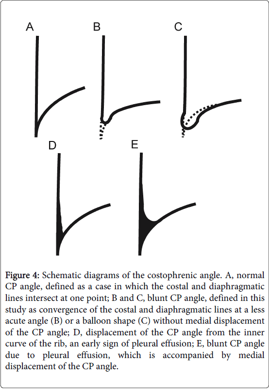 pulmonary-respiratory-medicine-balloon-shape