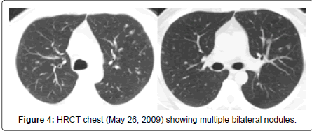pulmonary-respiratory-medicine-bilateral-nodules
