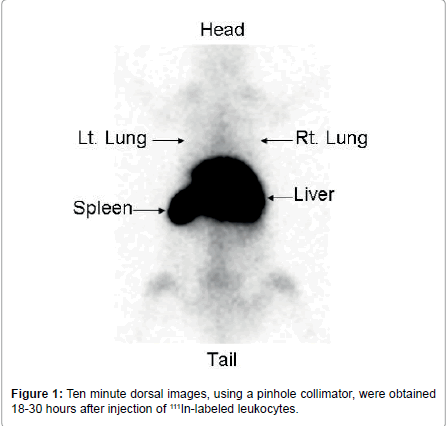 pulmonary-respiratory-medicine-dorsal-images