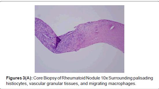 pulmonary-respiratory-medicine-granular-tissues
