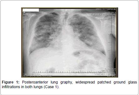 pulmonary-respiratory-medicine-lung-graphy