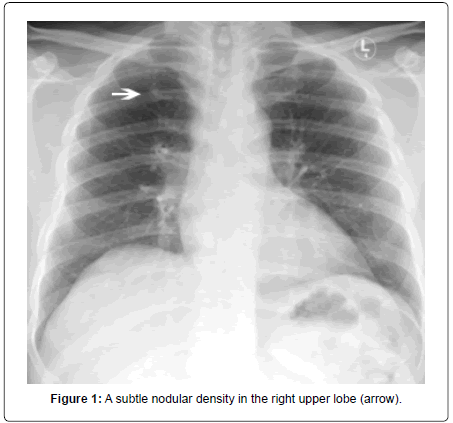 pulmonary-respiratory-medicine-nodular-density