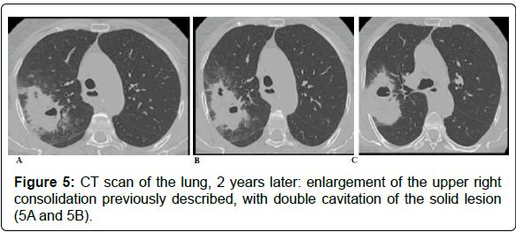 pulmonary-respiratory-medicine-years-later
