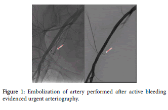 radiology-Embolization-artery-bleeding