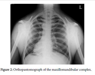radiology-Orthopantomograph-maxillomandibular-complex