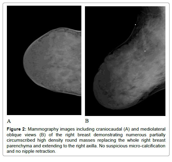 radiology-nipple-retraction