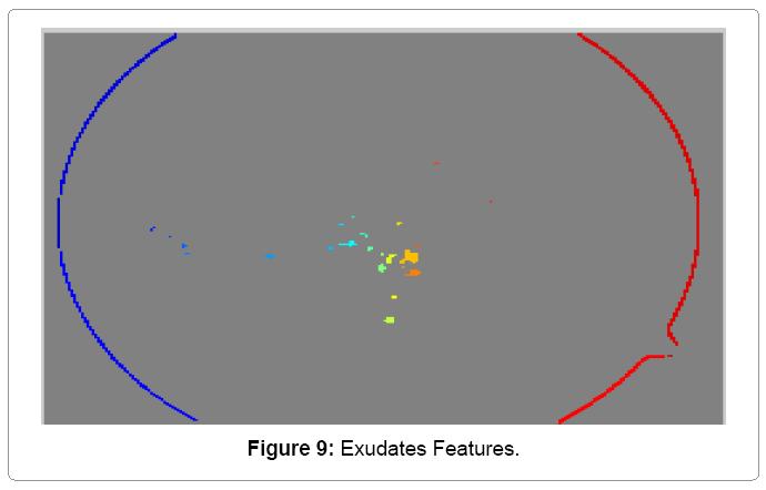 research-development-Exudates-Features