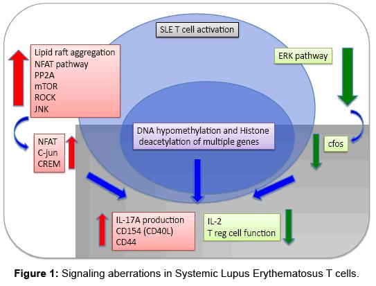 rheumatology-Lupus-Erythematosus-T-cells