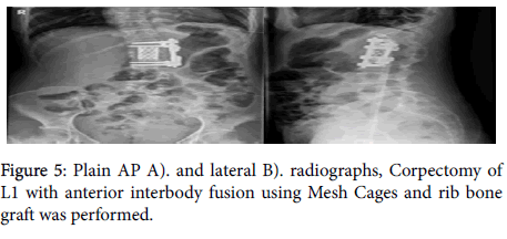 rheumatology-Mesh-Cages