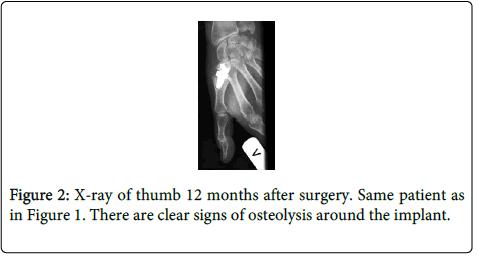 rheumatology-current-osteolysis-implant