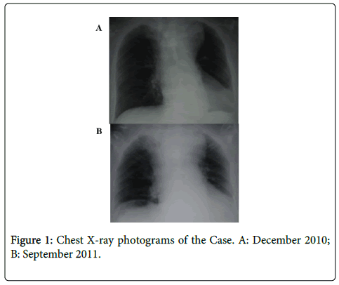 rheumatology-current-photograms-Chest