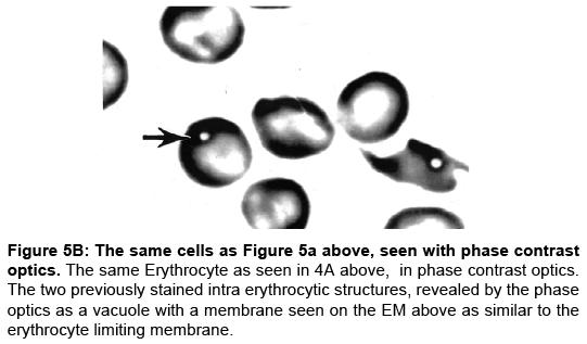 rheumatology-erythrocyte-limiting-membrane