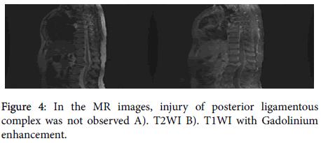 rheumatology-posterior-ligamentous
