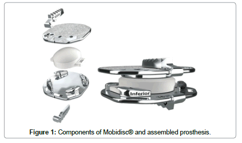 spine-Components-assembled-prosthesis