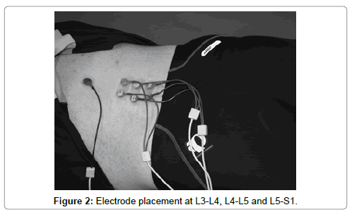 spine-Electrode-placement
