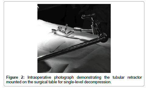 spine-Intraoperative-photograph-demonstrating