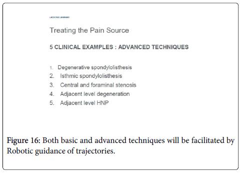 spine-Robotic-guidance-trajectories