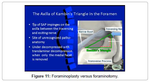 spine-foraminoplasty-versus-foraminotomy