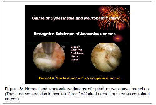 spine-normal-anatomic-variations-spinal-nerves