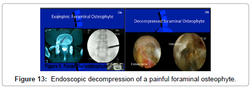 spine-painful-foraminal-osteophyte