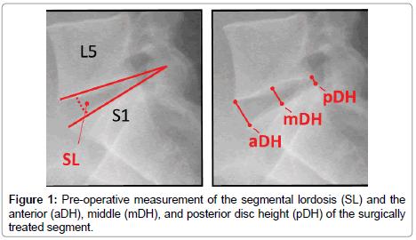spine-segmental-lordosis